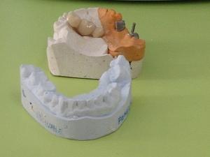 Две нижегородские клиники присвоили деньги за фиктивное лечение зубов
